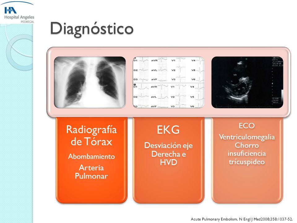 Diagnóstico EKG Radiografía de Tórax Desviación eje Derecha e HVD