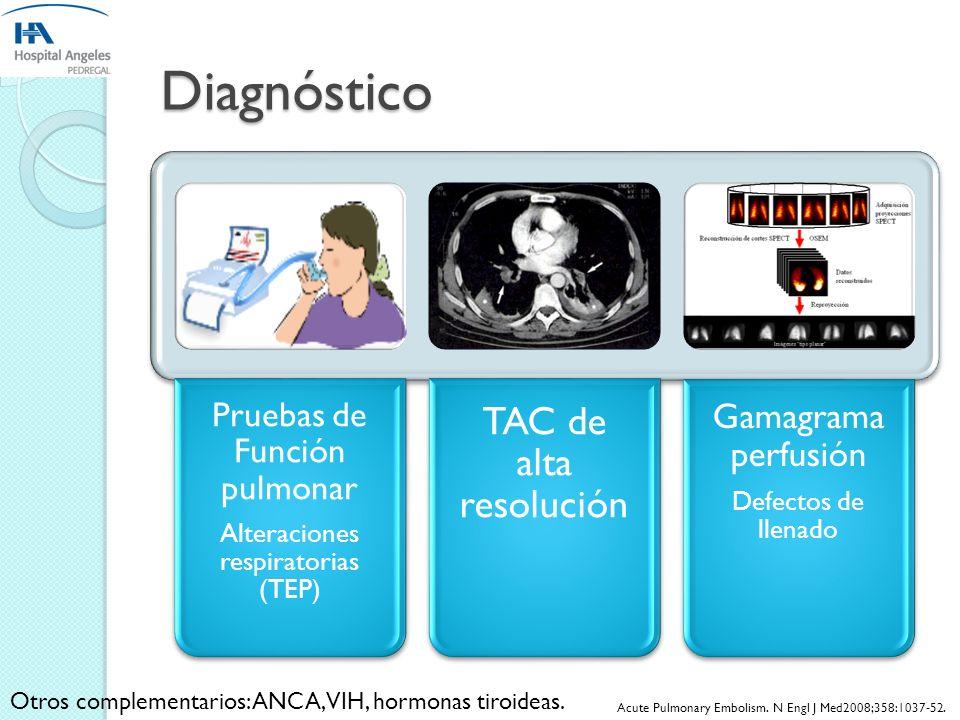 Diagnóstico Gamagrama perfusión Pruebas de Función pulmonar