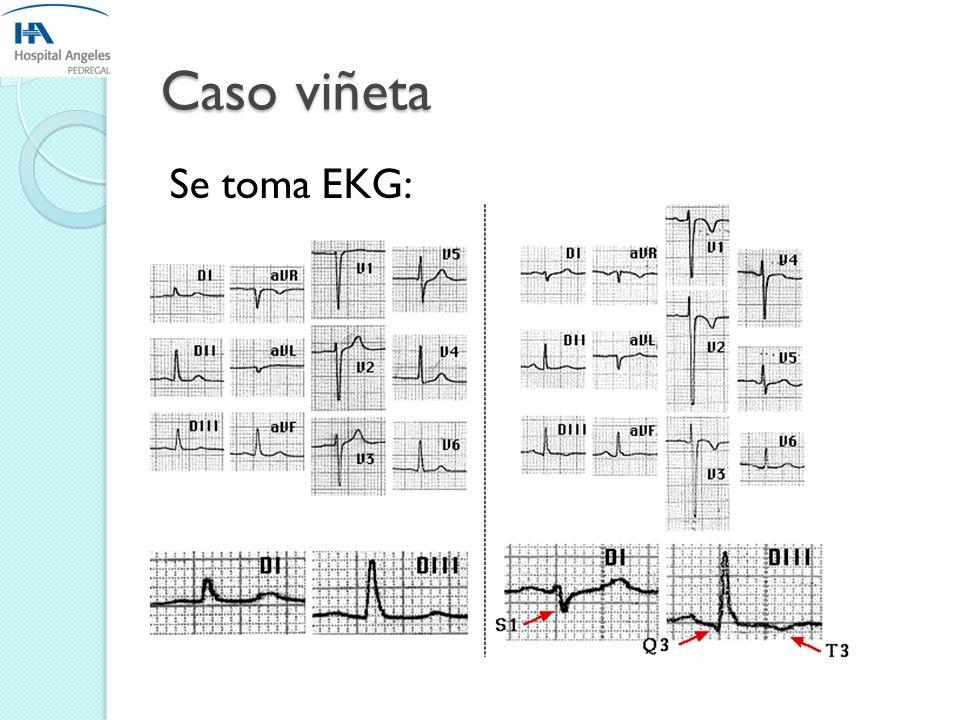 Caso viñeta Se toma EKG:
