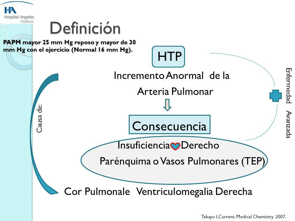 Definición HTP Incremento Anormal de la Consecuencia