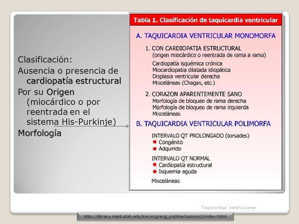 Clasificación: Ausencia o presencia de cardiopatía estructural Por su Origen (miocárdico o por reentrada en el sistema His-Purkinje) Morfología