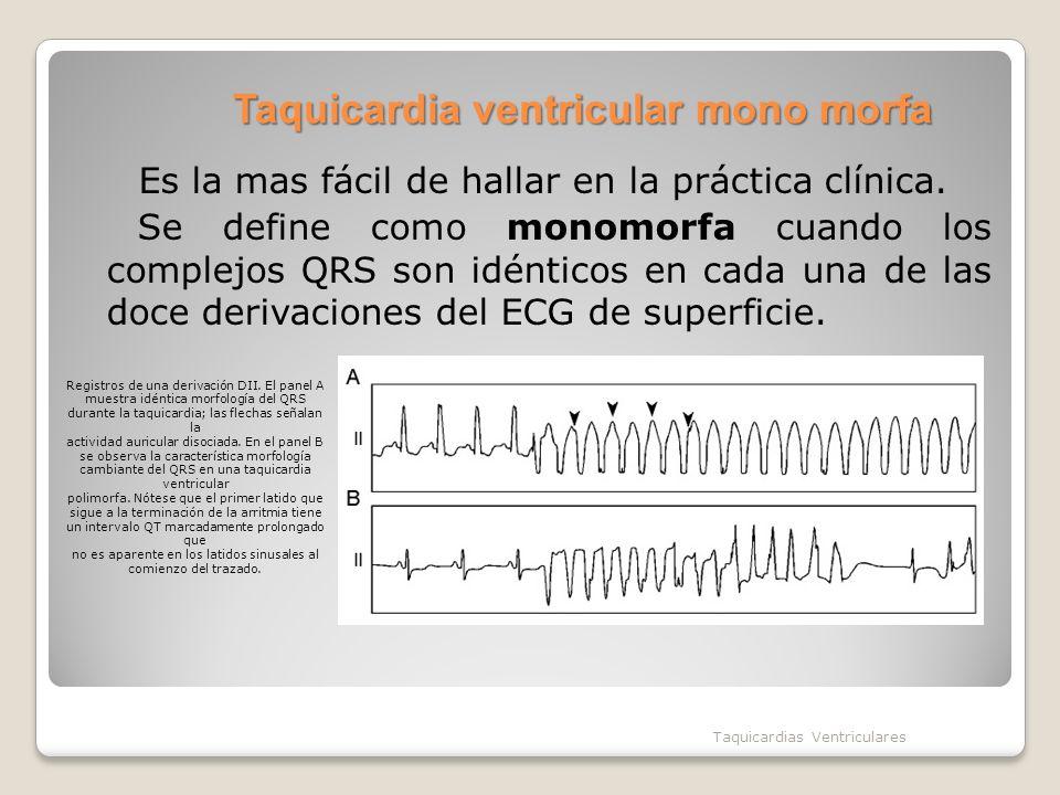 Taquicardia ventricular mono morfa