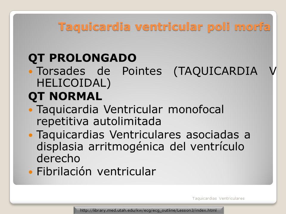Taquicardia ventricular poli morfa