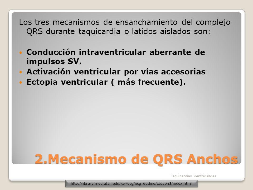 2.Mecanismo de QRS Anchos