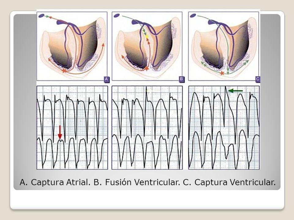 A. Captura Atrial. B. Fusión Ventricular. C. Captura Ventricular.