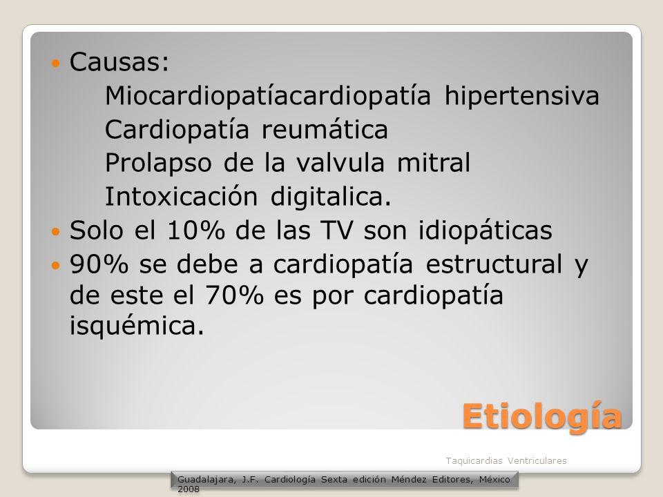 Etiología Causas: Miocardiopatíacardiopatía hipertensiva