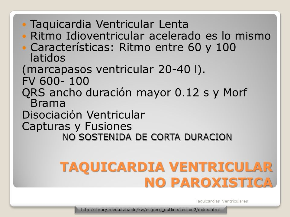 TAQUICARDIA VENTRICULAR NO PAROXISTICA