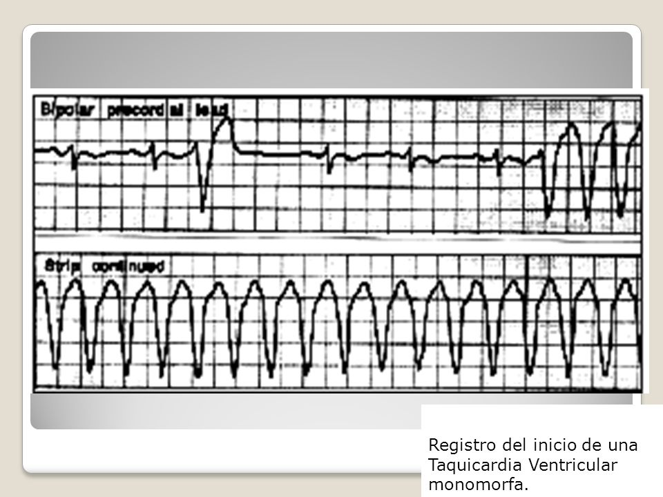 Registro del inicio de una Taquicardia Ventricular monomorfa.