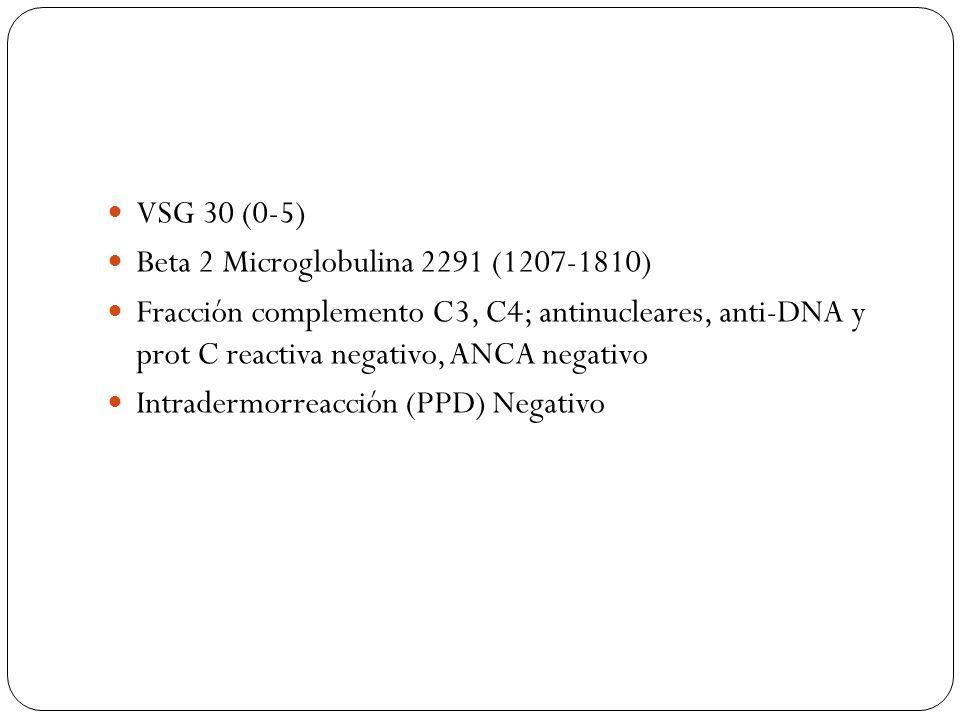VSG 30 (0-5) Beta 2 Microglobulina 2291 (1207-1810) Fracción complemento C3, C4; antinucleares, anti-DNA y prot C reactiva negativo, ANCA negativo.