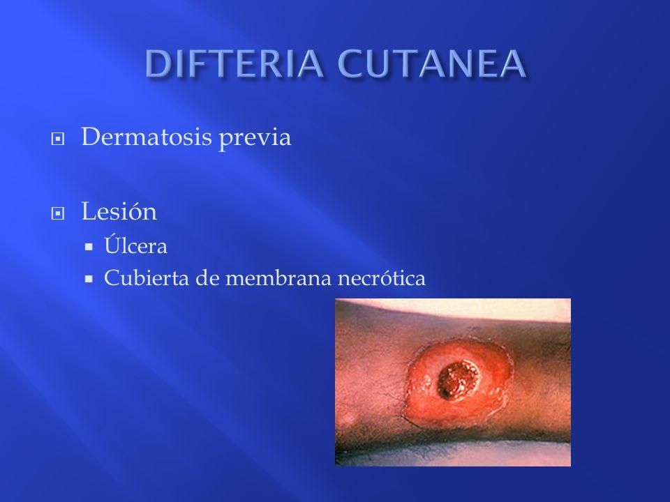 DIFTERIA CUTANEA Dermatosis previa Lesión Úlcera