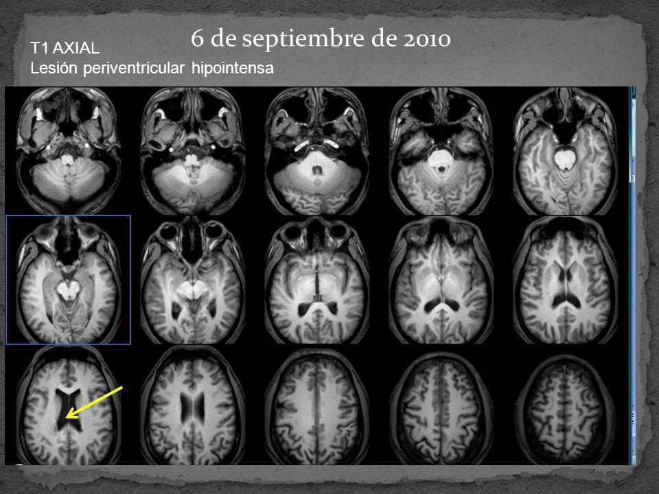 6 de septiembre de 2010 T1 AXIAL Lesión periventricular hipointensa
