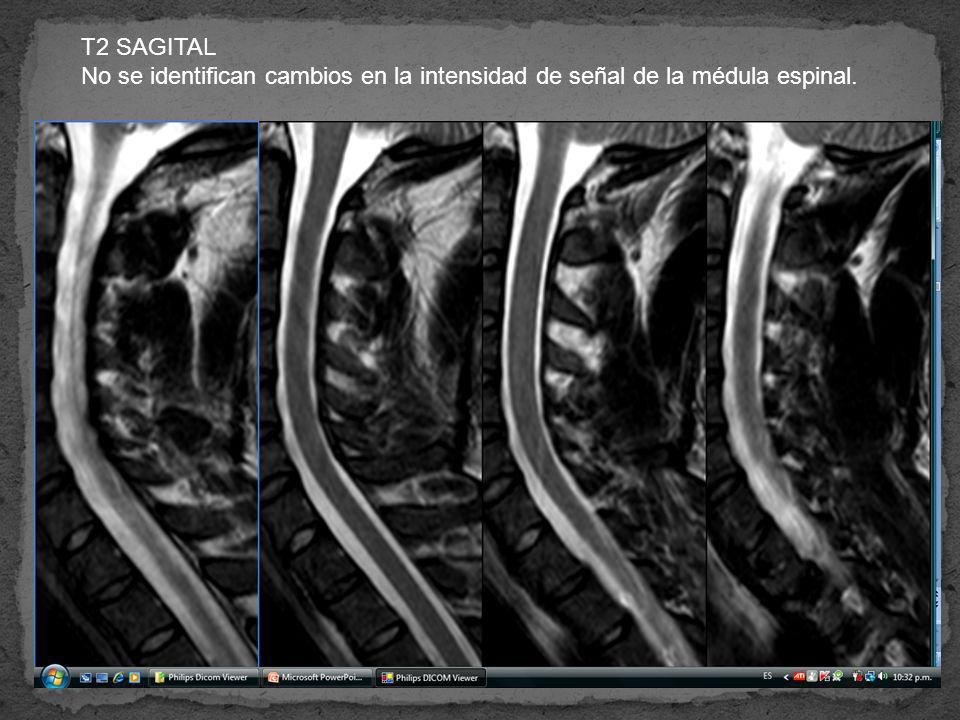 T2 SAGITAL No se identifican cambios en la intensidad de señal de la médula espinal.