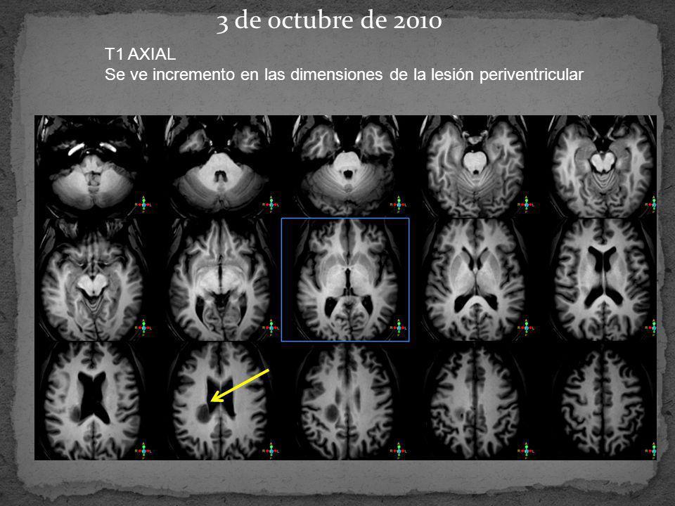 3 de octubre de 2010 T1 AXIAL Se ve incremento en las dimensiones de la lesión periventricular
