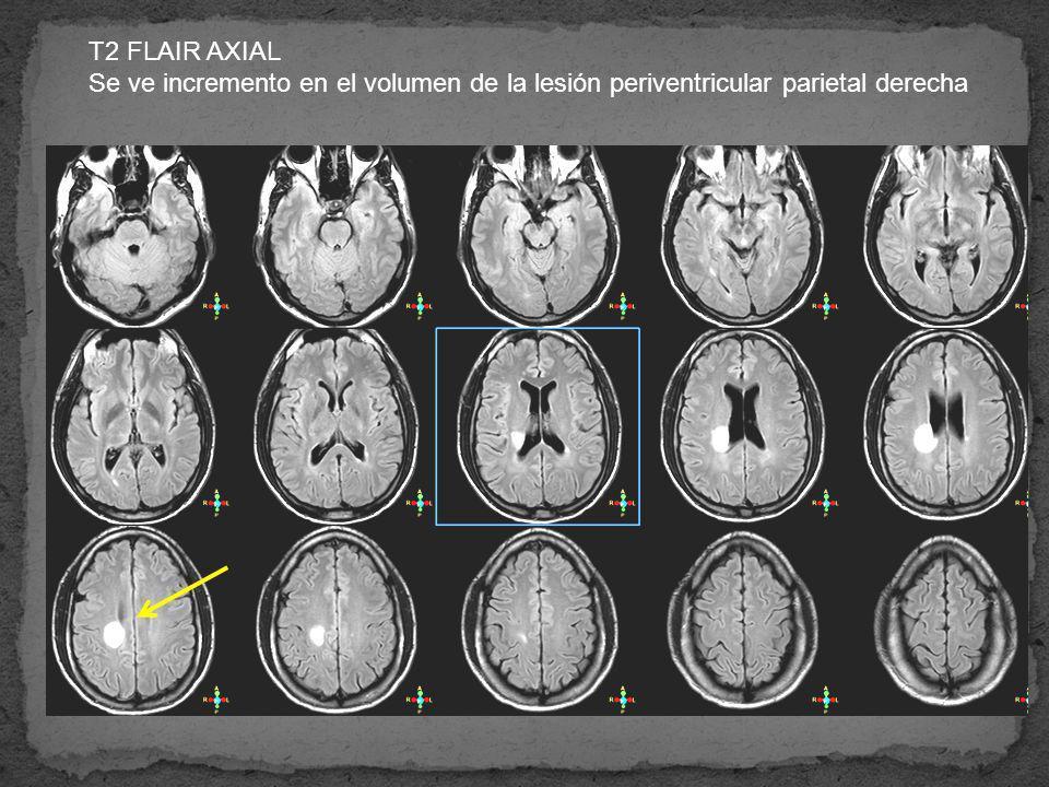 T2 FLAIR AXIAL Se ve incremento en el volumen de la lesión periventricular parietal derecha