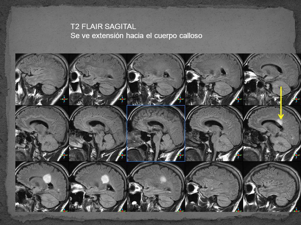 T2 FLAIR SAGITAL Se ve extensión hacia el cuerpo calloso