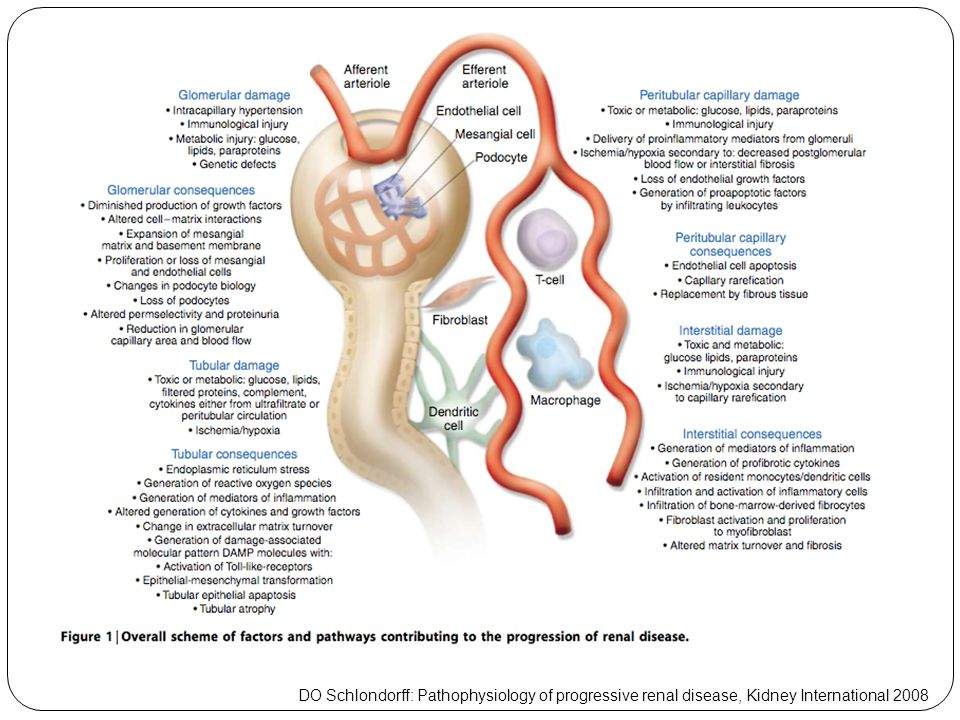 DO Schlondorff: Pathophysiology of progressive renal disease, Kidney International 2008