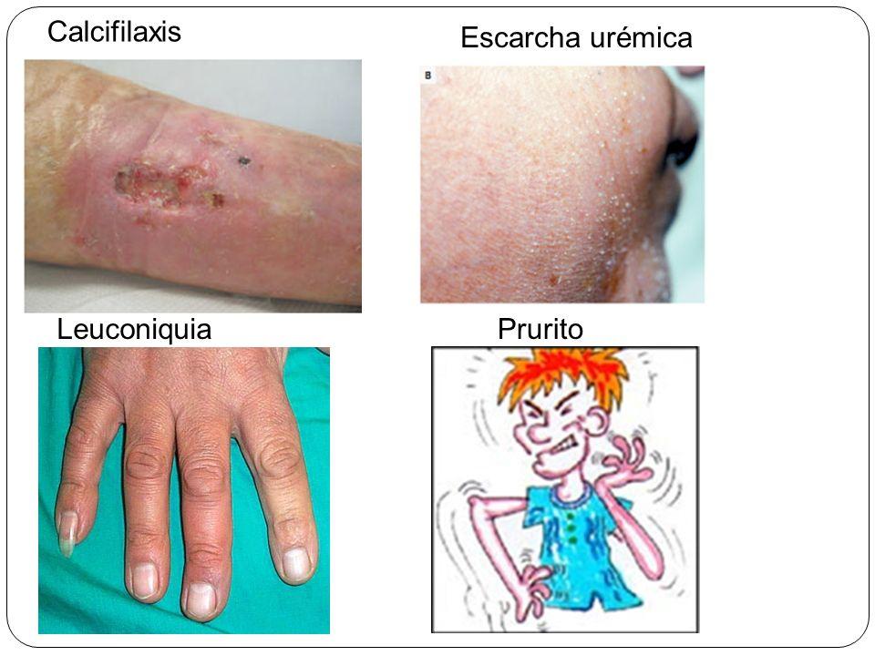Calcifilaxis Escarcha urémica Leuconiquia Prurito