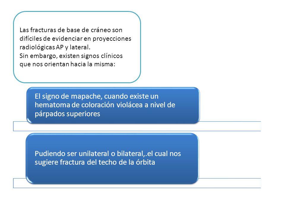 Las fracturas de base de cráneo son difíciles de evidenciar en proyecciones radiológicas AP y lateral.