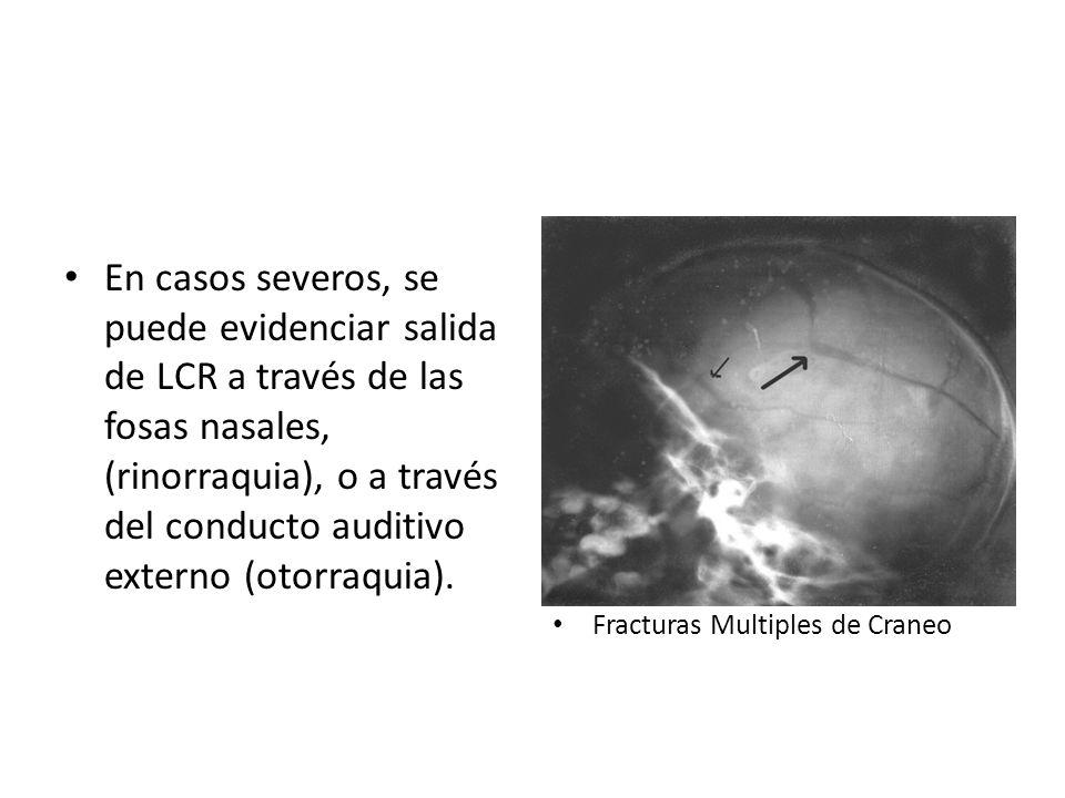 En casos severos, se puede evidenciar salida de LCR a través de las fosas nasales, (rinorraquia), o a través del conducto auditivo externo (otorraquia).