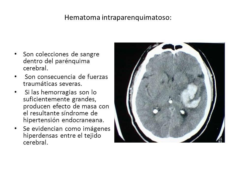 Hematoma intraparenquimatoso: