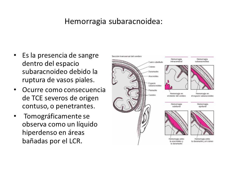 Hemorragia subaracnoidea:
