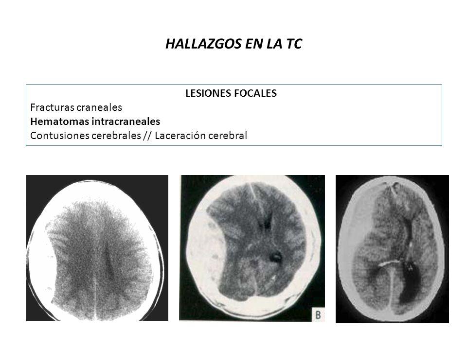 HALLAZGOS EN LA TC LESIONES FOCALES Fracturas craneales