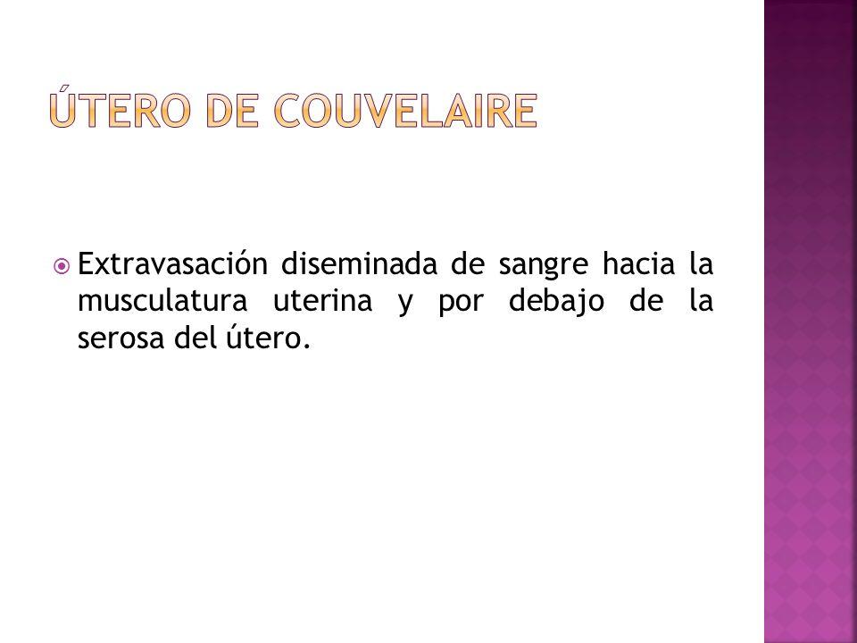 Útero de couvelaire Extravasación diseminada de sangre hacia la musculatura uterina y por debajo de la serosa del útero.