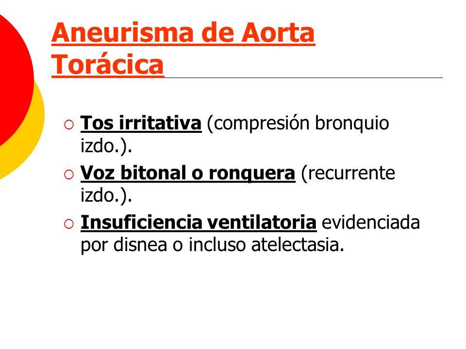 Aneurisma de Aorta Torácica