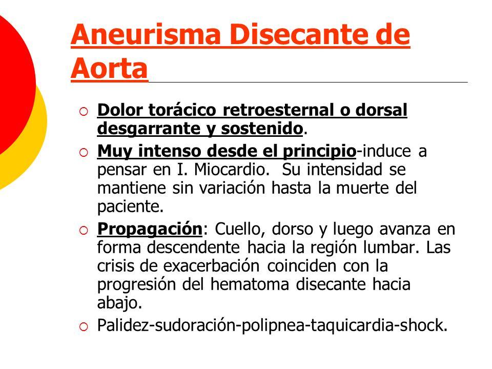 Aneurisma Disecante de Aorta