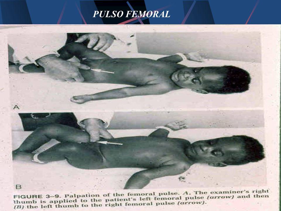 PULSO FEMORAL