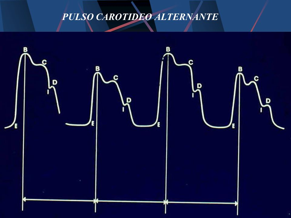 PULSO CAROTIDEO ALTERNANTE