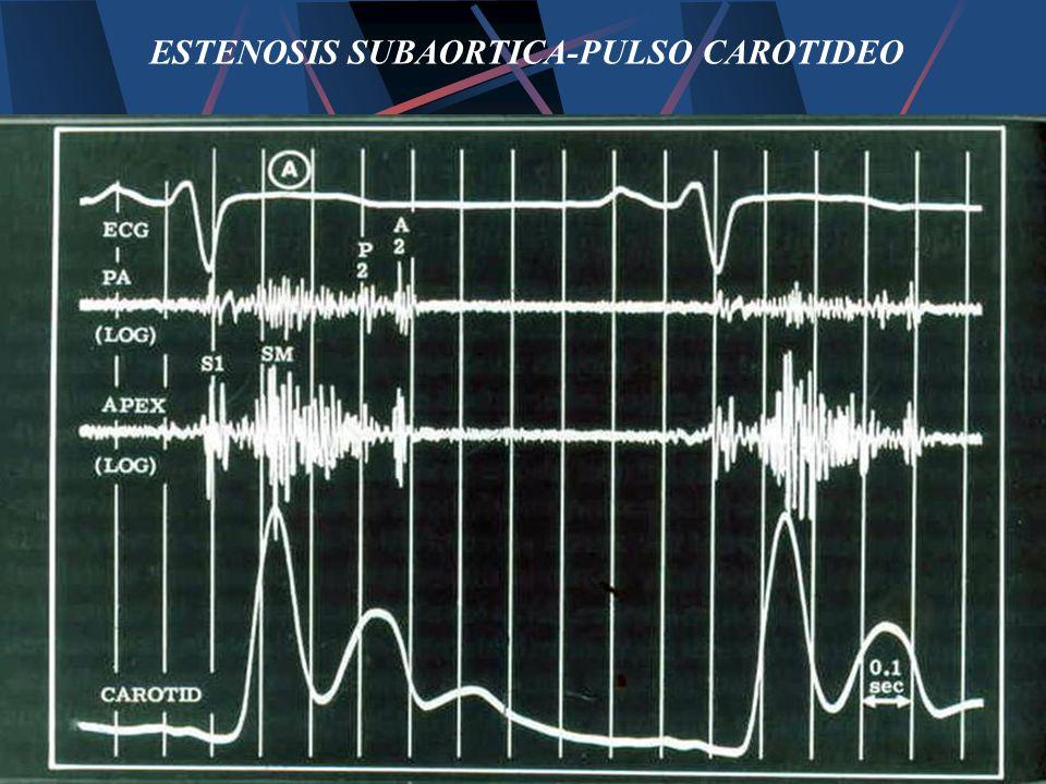 ESTENOSIS SUBAORTICA-PULSO CAROTIDEO