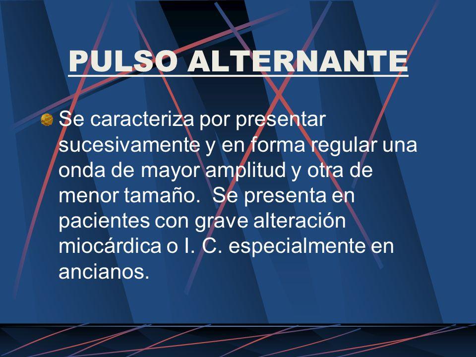 PULSO ALTERNANTE