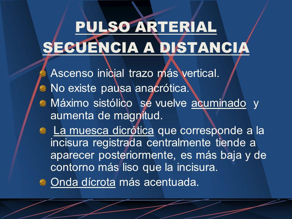 PULSO ARTERIAL SECUENCIA A DISTANCIA