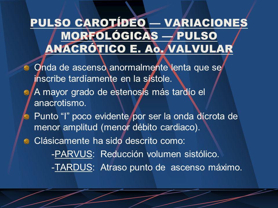 PULSO CAROTÍDEO — VARIACIONES MORFOLÓGICAS — PULSO ANACRÓTICO E. Ao