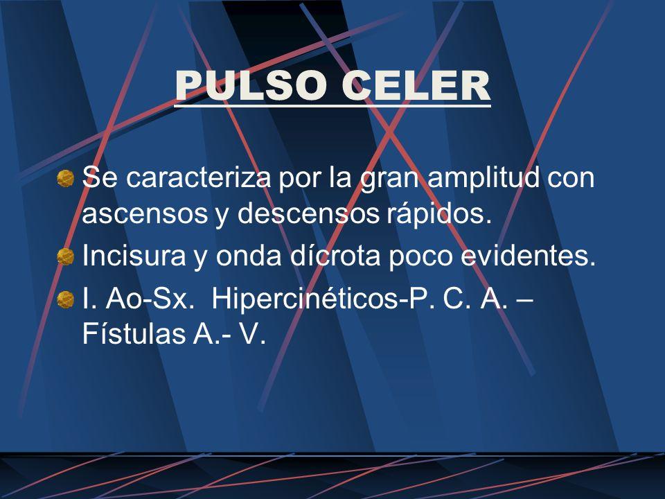 PULSO CELER Se caracteriza por la gran amplitud con ascensos y descensos rápidos. Incisura y onda dícrota poco evidentes.