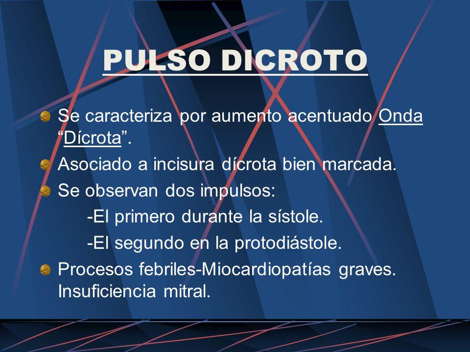 PULSO DICROTO Se caracteriza por aumento acentuado Onda Dícrota .
