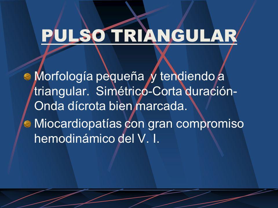 PULSO TRIANGULAR Morfología pequeña y tendiendo a triangular. Simétrico-Corta duración-Onda dícrota bien marcada.