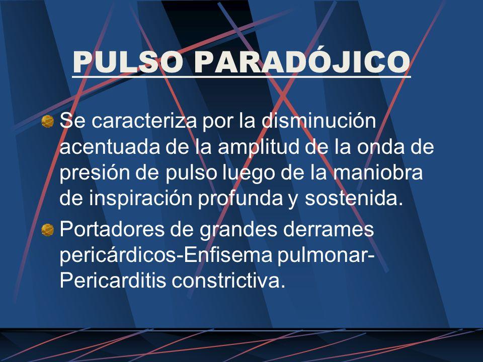 PULSO PARADÓJICO