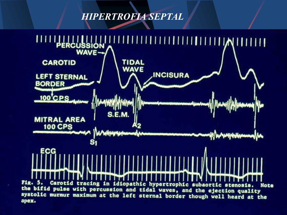 HIPERTROFIA SEPTAL