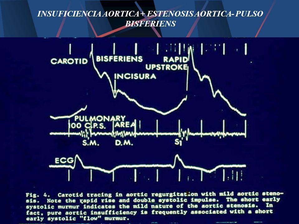 INSUFICIENCIA AORTICA + ESTENOSIS AORTICA- PULSO BISFERIENS