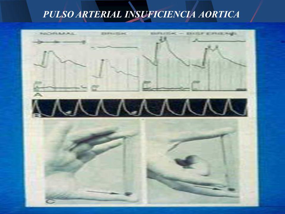 PULSO ARTERIAL INSUFICIENCIA AORTICA