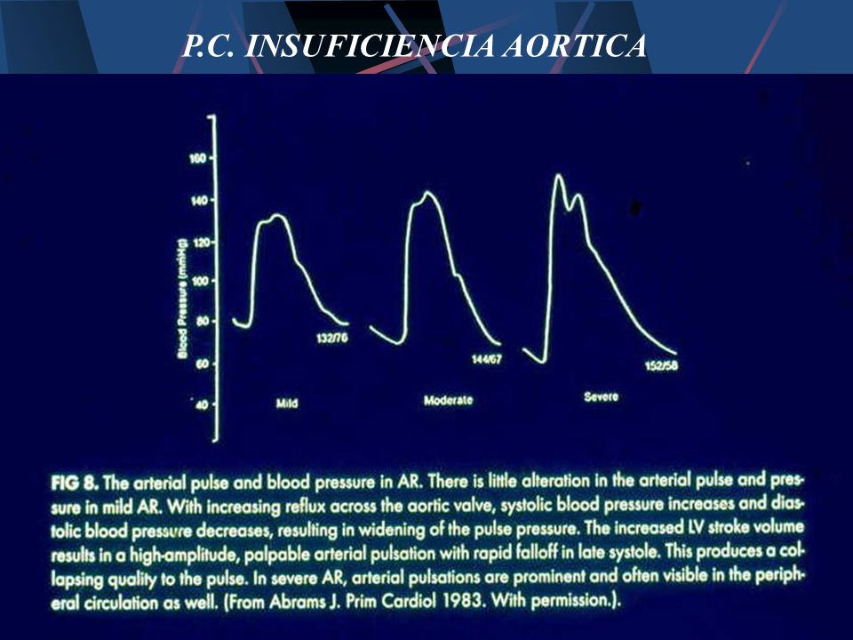P.C. INSUFICIENCIA AORTICA