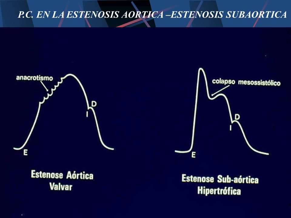 P.C. EN LA ESTENOSIS AORTICA –ESTENOSIS SUBAORTICA
