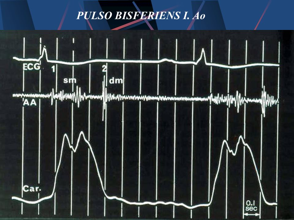 PULSO BISFERIENS I. Ao
