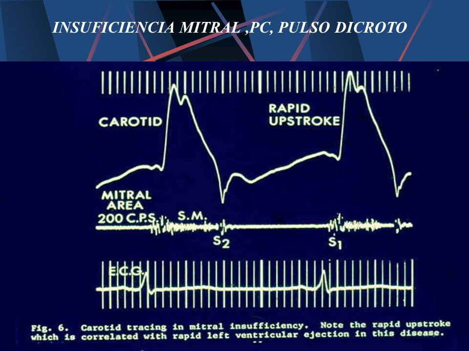 INSUFICIENCIA MITRAL ,PC, PULSO DICROTO