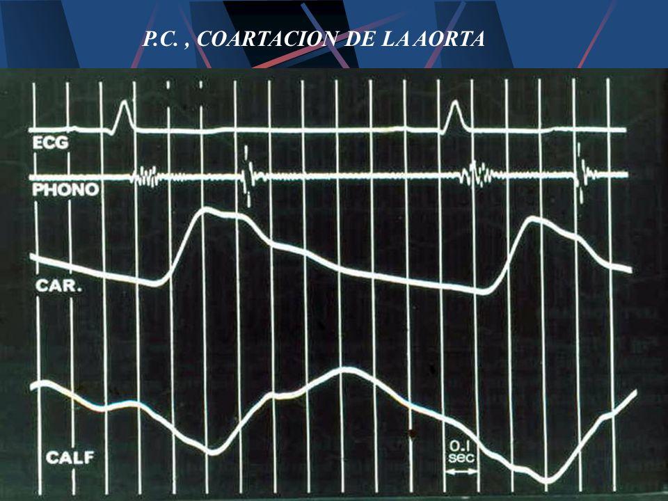 P.C. , COARTACION DE LA AORTA