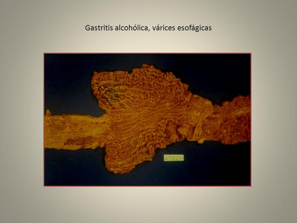 Gastritis alcohólica, várices esofágicas