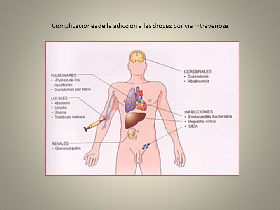 Complicaciones de la adicción a las drogas por vía intravenosa