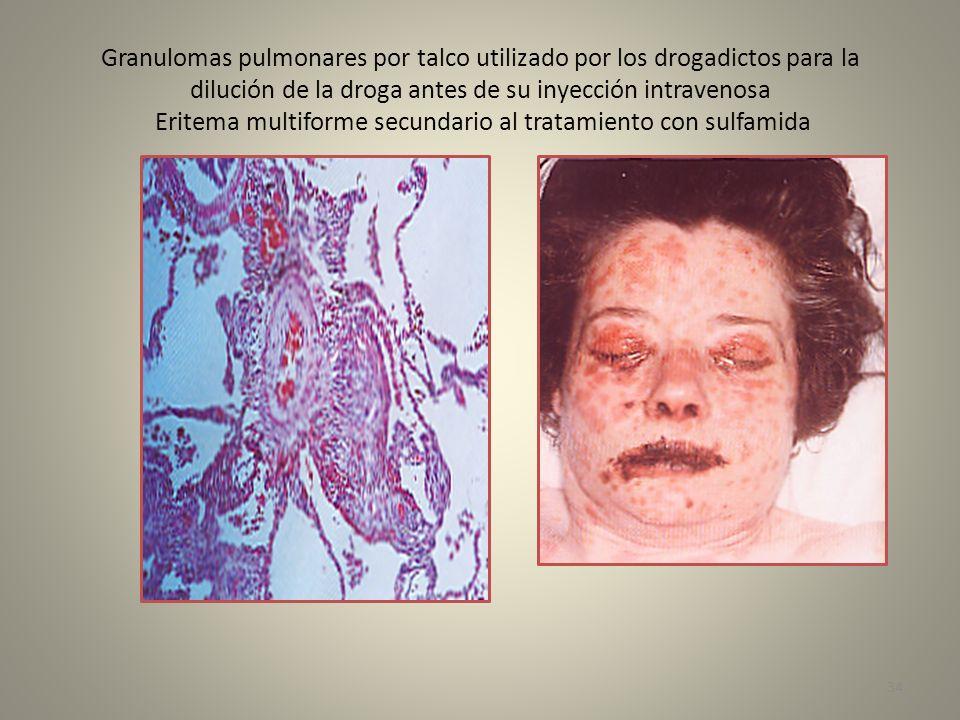 Granulomas pulmonares por talco utilizado por los drogadictos para la dilución de la droga antes de su inyección intravenosa Eritema multiforme secundario al tratamiento con sulfamida